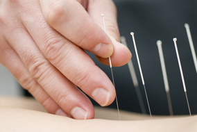body and ear acupuncture Dr. Kreisel